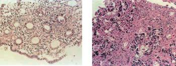MBGPMW2010013D细胞培养用热可逆凝胶-细胞培养用试剂