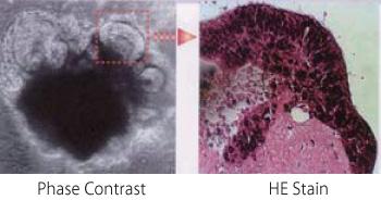 热可逆温敏性水凝胶,热可逆温敏性水凝胶原理
