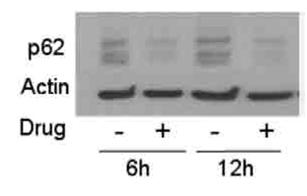 细胞自噬研究_价格-厂家-供应商-WAKO和光纯药(和光纯药工业株式会社)